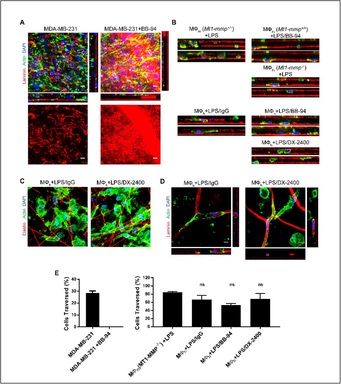 Macrophage Dependent Trafficking And Remodeling Of The Basement Membrane Interstitial Matrix Interface Biorxiv