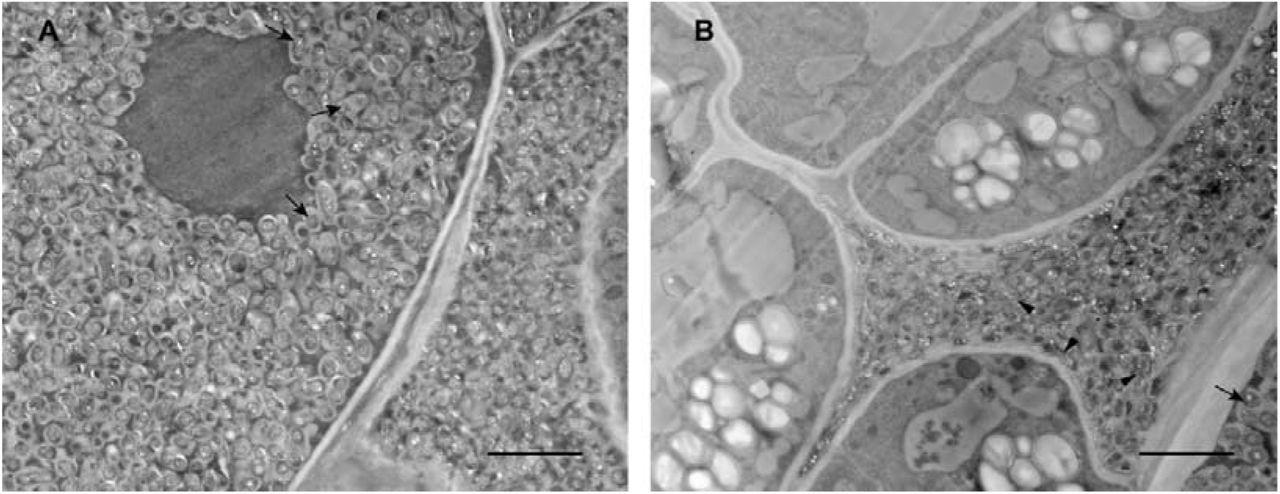Hydrogen sulfide promotes nodulation and nitrogen fixation