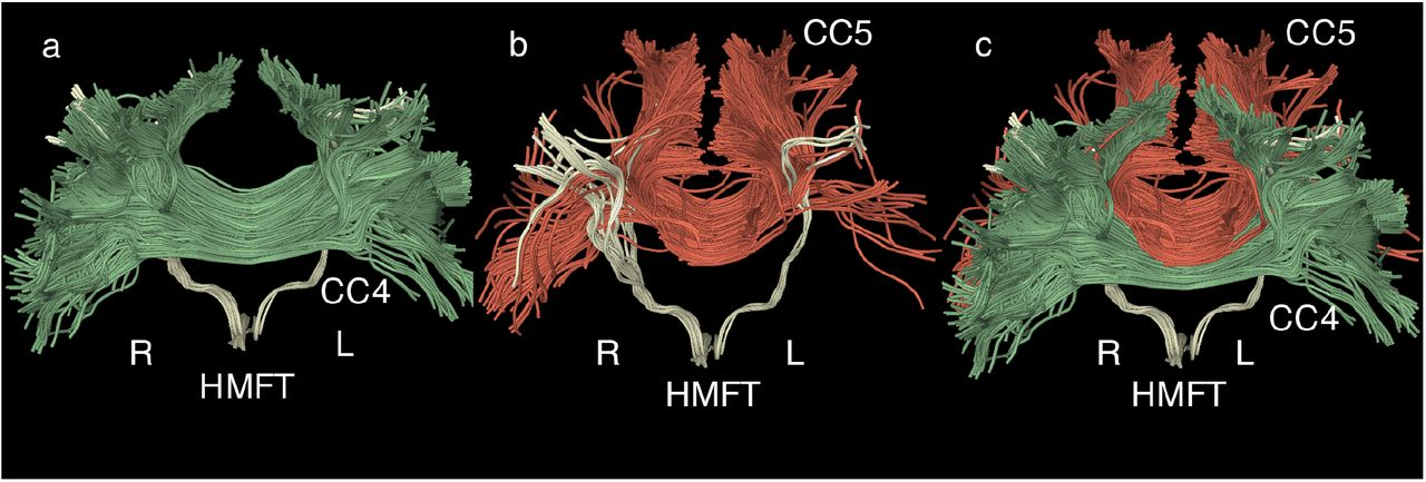 Individual variations of the human corticospinal tract and