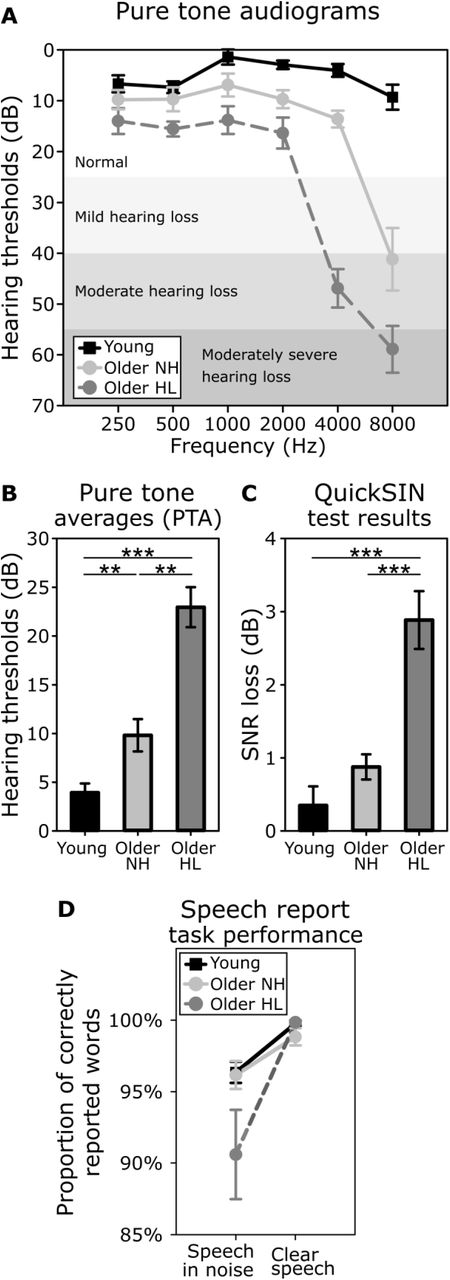 Decline of auditory-motor speech processing in older adults