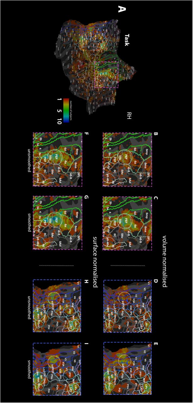Addressing challenges of high spatial resolution, UHF field