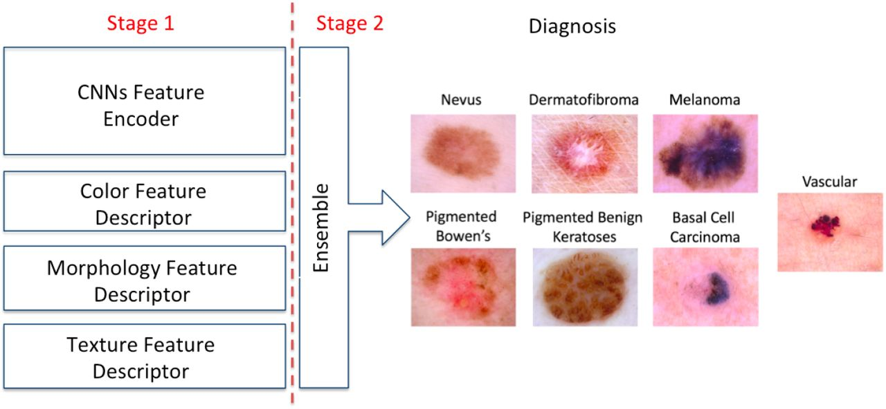 Skin Lesion Classification Via Combining Deep Learning