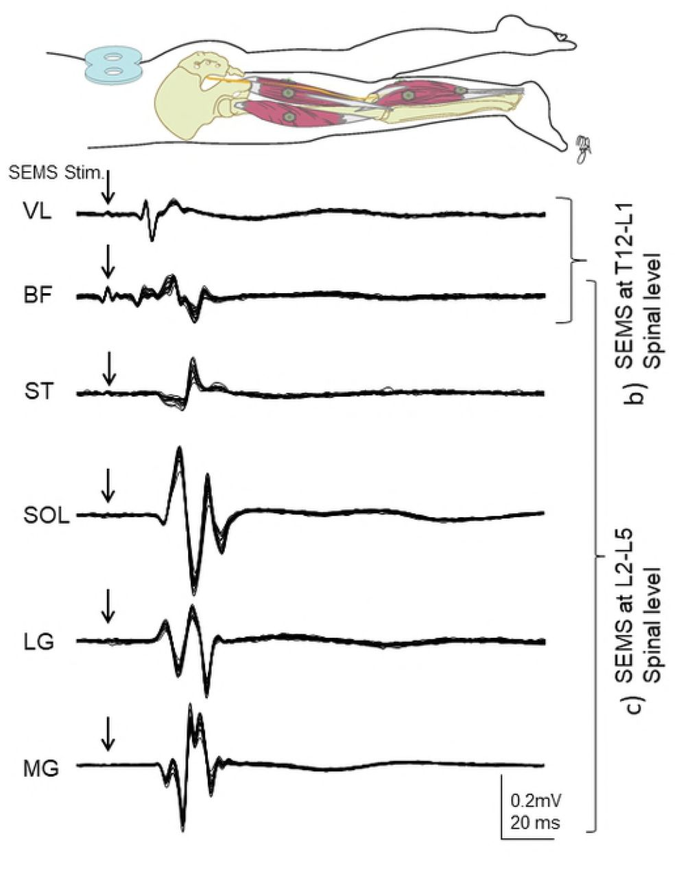 Non-invasive spinal electro-magnetic stimulation (SEMS): a