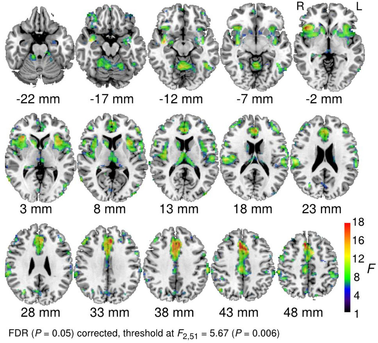 Glucocorticoids and cortical decoding in the phobic brain | bioRxiv
