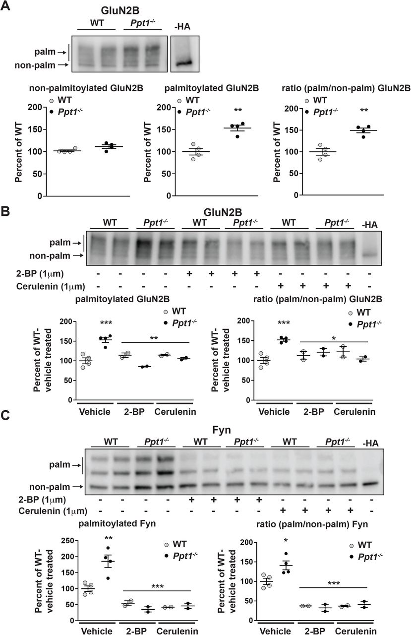 NMDA Receptor Dysregulation by Defective Depalmitoylation in
