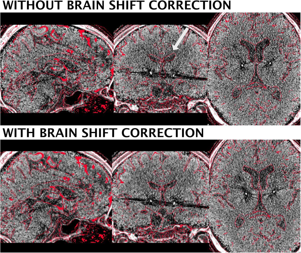 Lead-DBS v2: Towards a comprehensive pipeline for deep brain