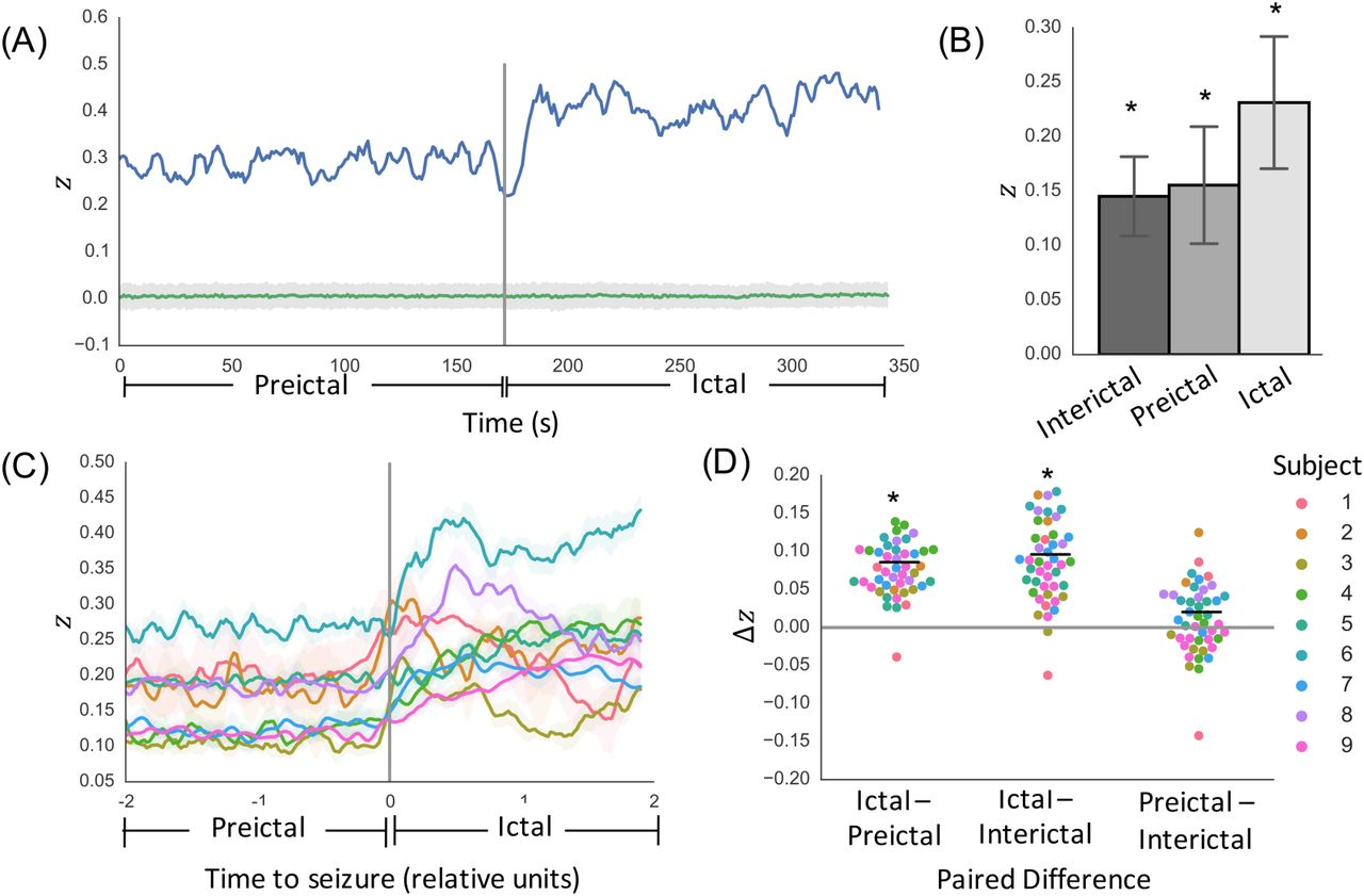 Local structural connectivity directs seizure spread in focal