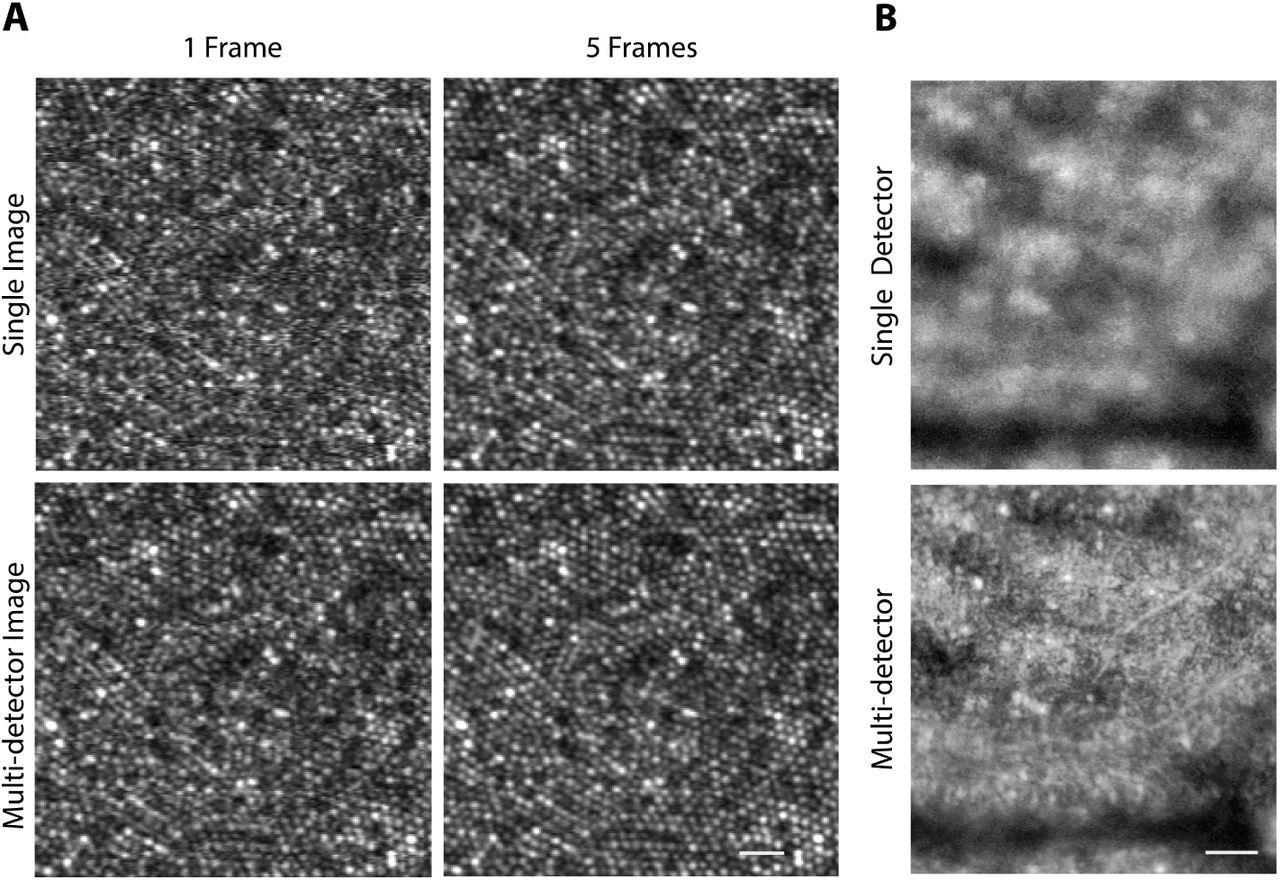Versatile Multi-Detector Scheme for Adaptive Optics Scanning Laser