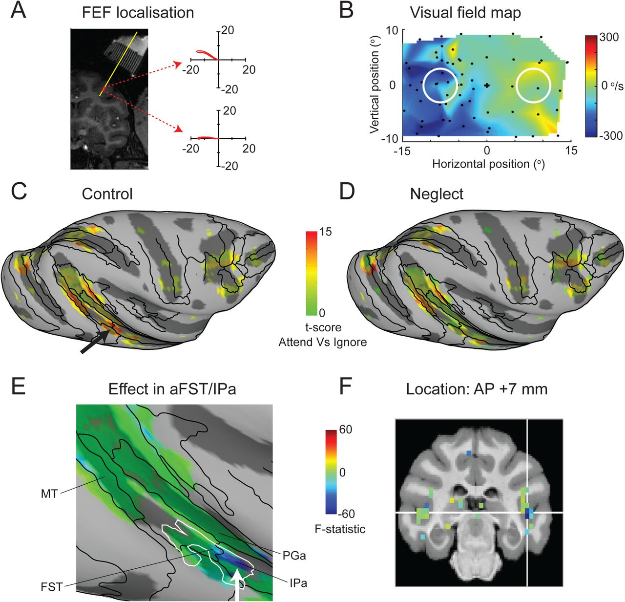 Focal disruption of temporal cortex in macaque during