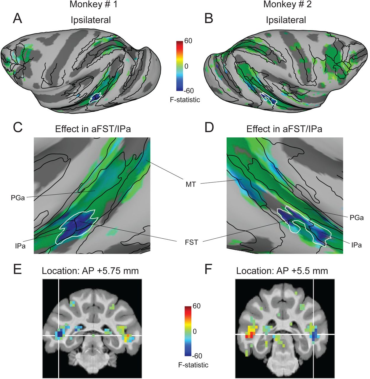 Focal disruption of temporal cortex in macaque during midbrain