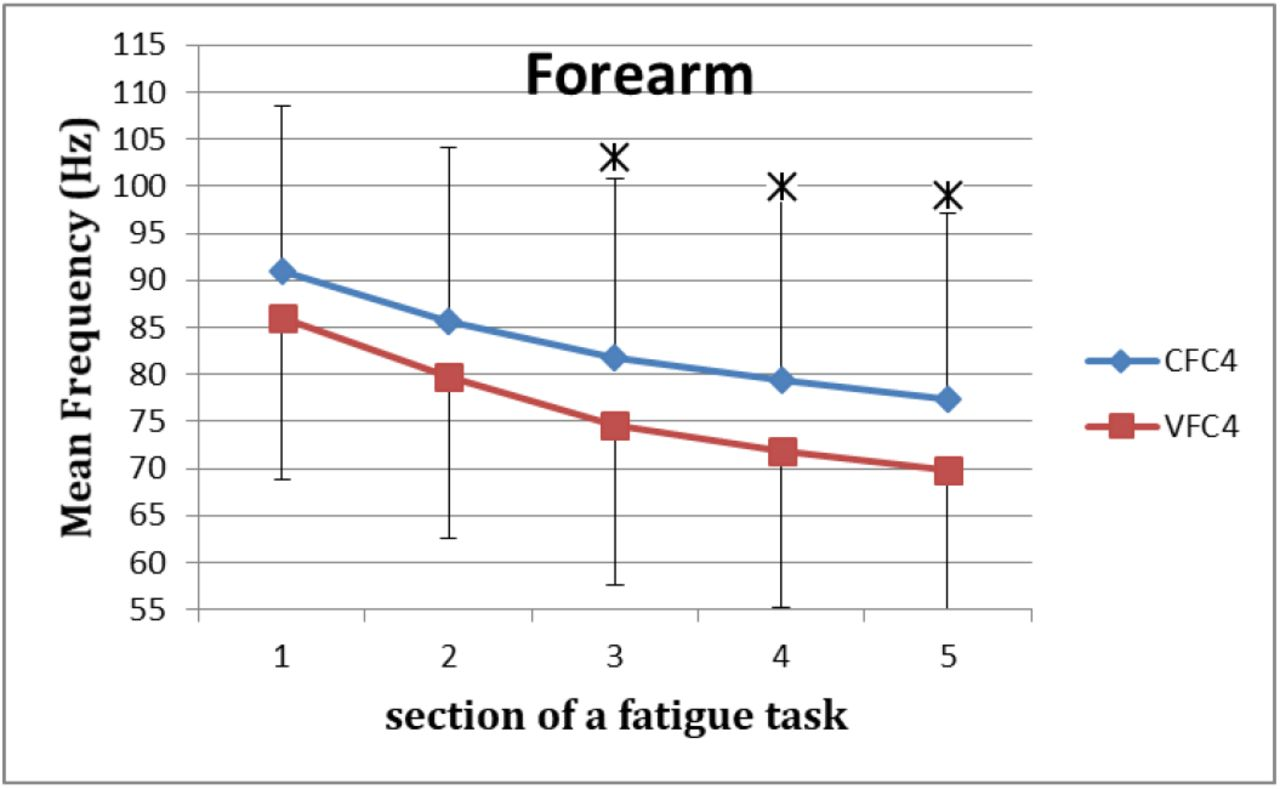 Fatiguing Effects of Indirect Vibration Stimulation in Upper
