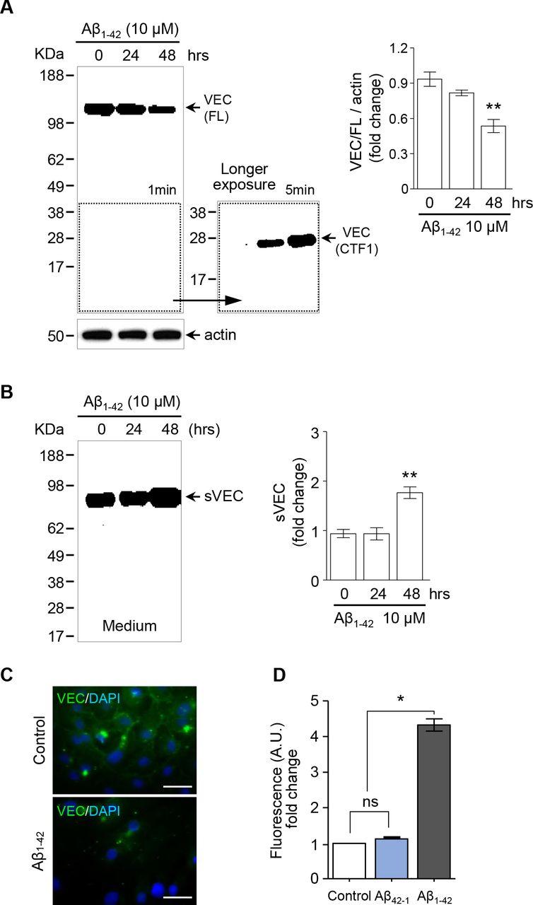 f7e0b666448d Alteration of Vascular Endothelial Cadherin in Alzheimer s Disease ...