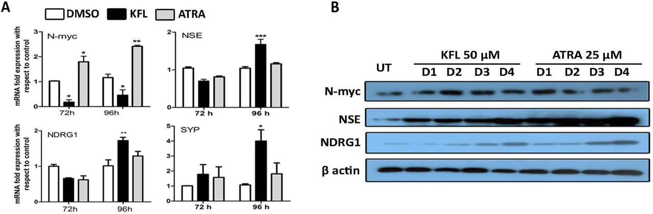 IRE1α is critical for kaempferol induced neuroblastoma