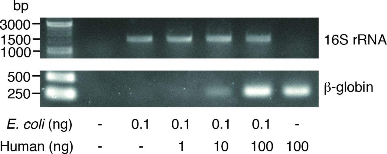 Direct PCR amplification of 16S rRNA genes offers accelerated