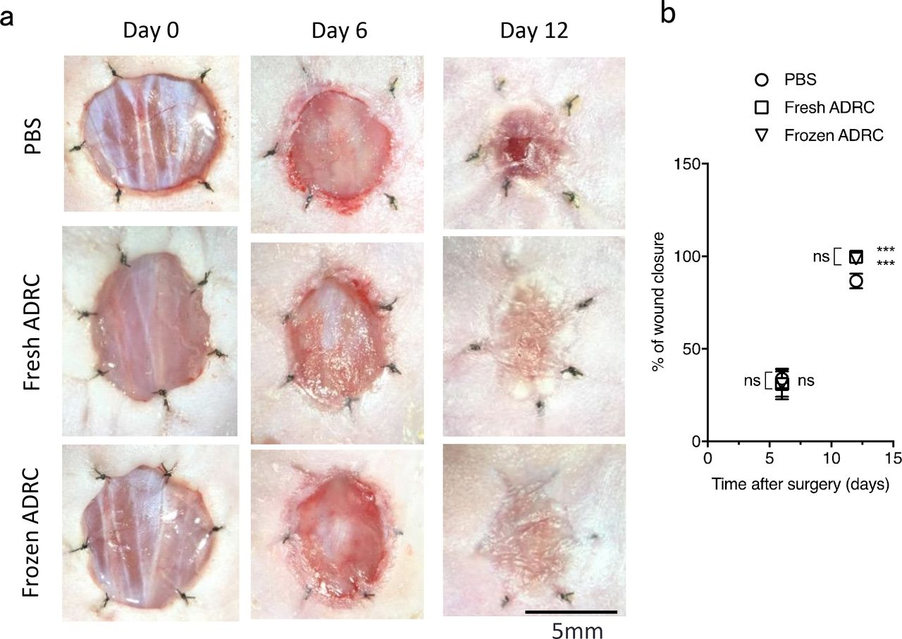 Sufficient therapeutic effect of cryopreserved frozen adipose