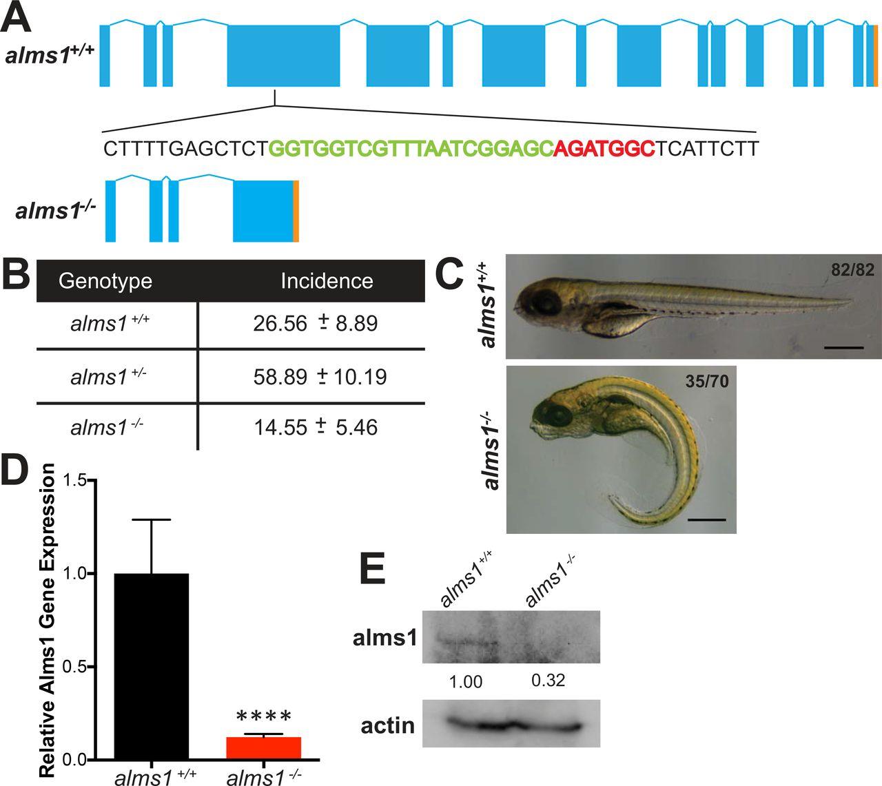 Genomic knockout of alms1 in zebrafish recapitulates Alström