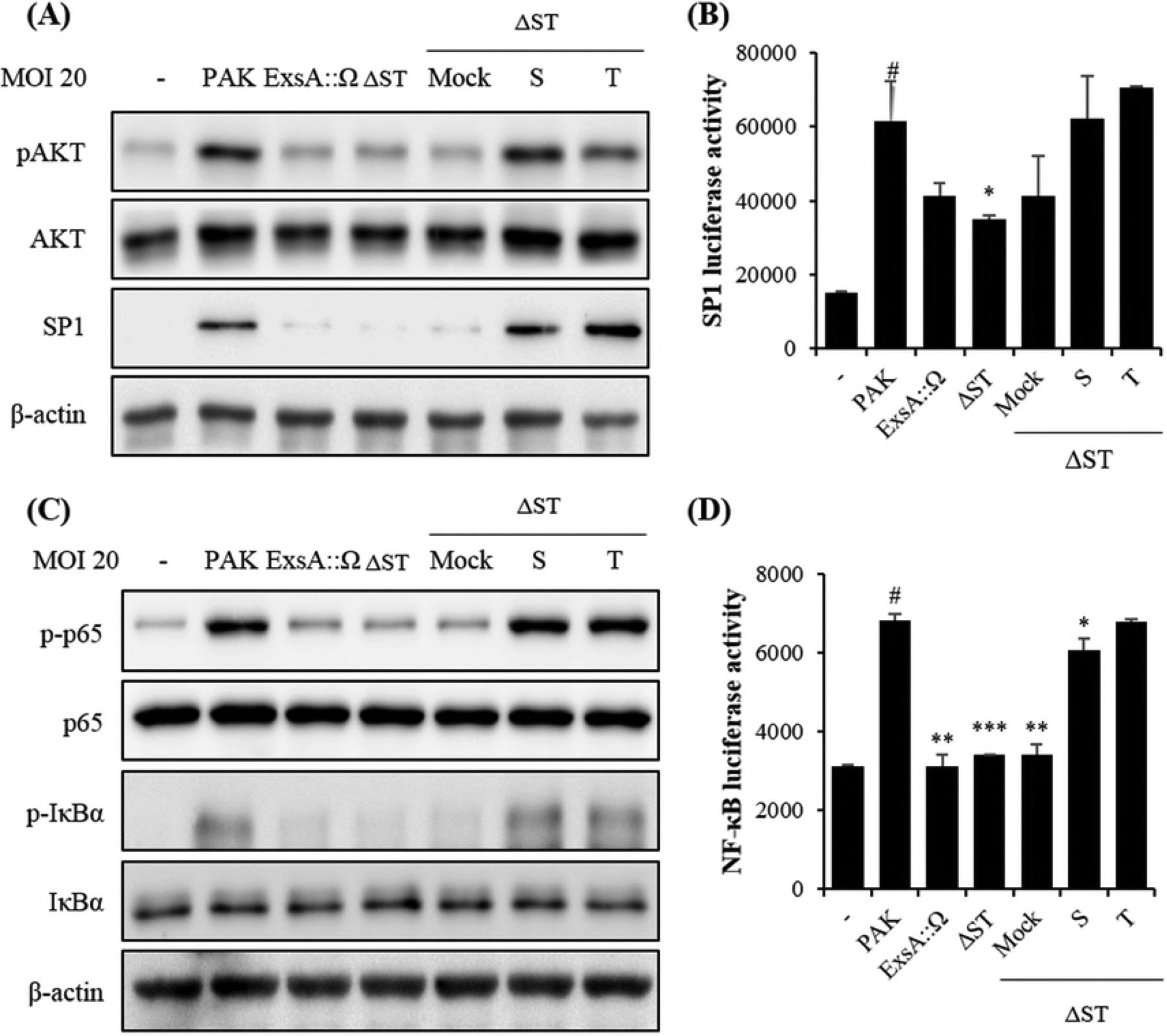 "ExoS and ExoT are required and each sufficient to increase NF-κB and AKT signaling in A549 cells. A549 cells were infected with the indicated strains for 1 h. (A) AKT and p-AKT expression as detected by western blotting. Quantification of p-AKT and SP1 expression using RAS-4000. (B) A549 cells were transfected with SP1 luciferase (Luc) reporter plasmid (0.1 μg). (C) NF-κB expression as detected by western blotting. Quantification of p-p65 and p-lκB-α expression using RAS-4000. β-actin was used as the internal control. (D) A549 cells were transfected with expression NF-κkB luciferase (Luc) reporter plasmid (0.1 μg). At 24 h after transfection, A549 cells were treated with the strains at MOI = 20 for 1 h, and then, luciferase activity was measured. The data were normalized to β-galactosidase activity. All data are representative of 3 independent experiments. Luciferase activities were measured 24 h after the transfection. ""–"", control A549 cells treated with PBS only; PAK, A549 cells infected with P. aeruginosa; ExsA::Ω, A549 cells infected with ExsA::Ω (no T3SS); ΔST, PAK-ΔST mutant; Mock, PAKΔSTmt-pUCP18; S, PAKΔSTmt-pUCP18PAKexoS; T, PAKΔSTmt-pUCP18PAKexoT (MOI = 20)."