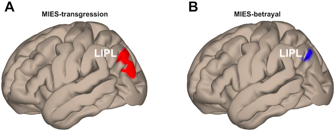 Resting-State Brain Fluctuation and Functional Connectivity