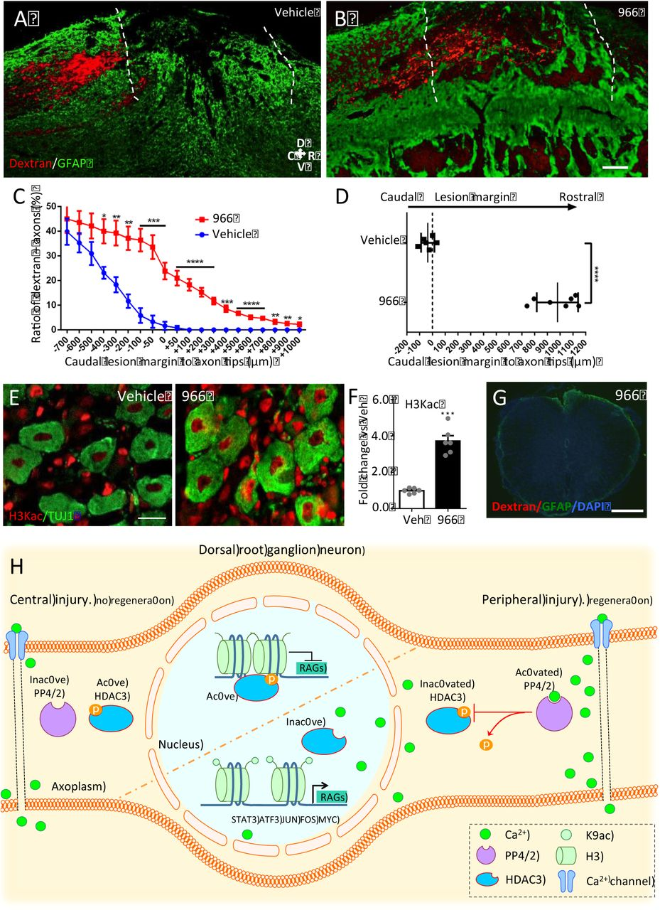 PP4-dependent HDAC3 dephosphorylation discriminates between axonal