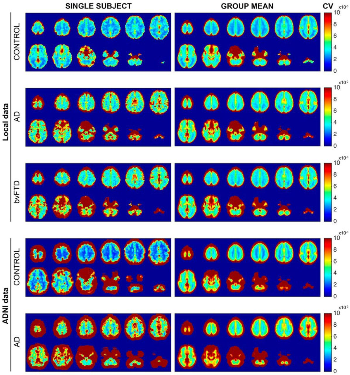 Altered BOLD signal variation in Alzheimer's disease and