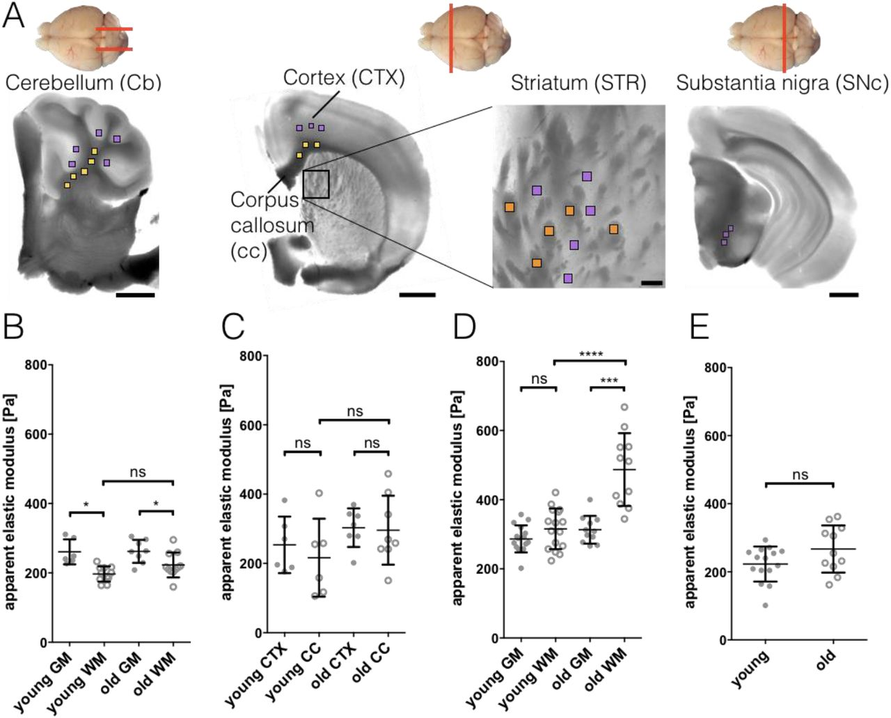 Acute but not inherited demyelination in mouse models leads to brain