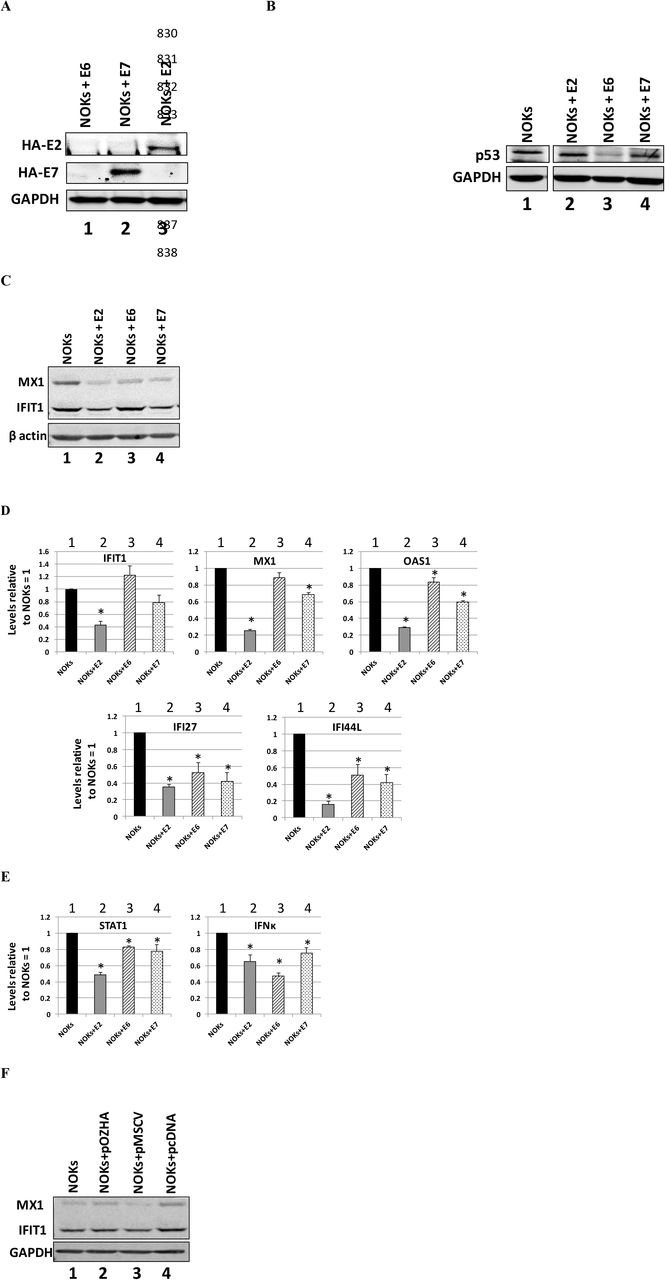 HPV16 E2, E6 and E7 can repress innate immune gene expression in NOKs. A) Western blot of NOKs cells transduced and selected following infection with retroviruses expressing HA-tagged E6 (lane 1), E7 (lane 2) and E2 (lane 3) with an HA antibody. GAPDH is shown as a loading control. B) Western blot of NOKs cells transduced and selected following infection with retroviruses expressing HA-tagged E6 (lane 1), E7 (lane 2) and E2 (lane 3) with a p53 antibody. GAPDH is shown as a loading control. There were lanes between the NOKs (lane 1) and the viral protein expressing NOKs lanes (2-4) that have been removed for clarity, but the NOKs sample image is taken from the same membrane and exposure. C) Western blotting of NOKs cells and NOKs expressing the indicated viral proteins with MX1 and IFIT1 antibodies. β-actin is shown as a loading control. D) Expression levels of a sub-set of U-ISGF3 genes in NOKs and NOKs expressing the indicated viral proteins. Results are expressed as fold change from that observed in parental NOKs and represent the average of three independent experiments. Standard error bars are shown. E) Expression of STAT1 and IFNκ genes in NOKs and NOKs expressing the indicated viral proteins. F) Transduction with retroviral vectors does not induce repression of U-ISGF3 proteins. Results are expressed as fold change from that observed in parental NOKs and represent the average of three independent experiments. Standard error bars are shown. Bars marked with * in D and E are significantly different from NOKs (p-value