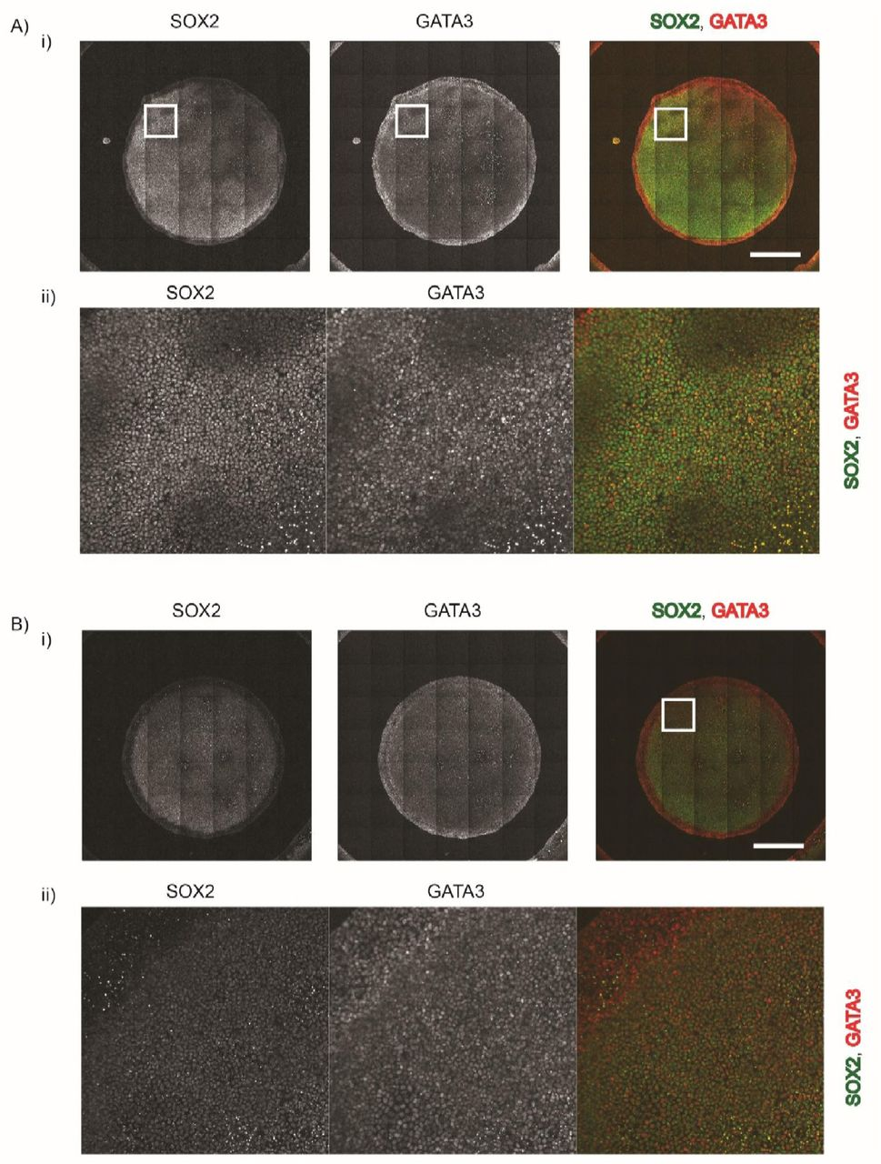 RD-like spatial oscillations of pre-neurulation-like fates detected when large geometrically confined hPSC colonies are treated with 200ng/ml BMP4 and SB in N2B27 medium. Representative immunofluorescent images of geometrically confined hPSC colonies of 3mm diameter stained for SOX2, and GATA3. The colonies were treated with 200ng/ml of BMP4 and SB for 48h. Scale bar represents 1mm.