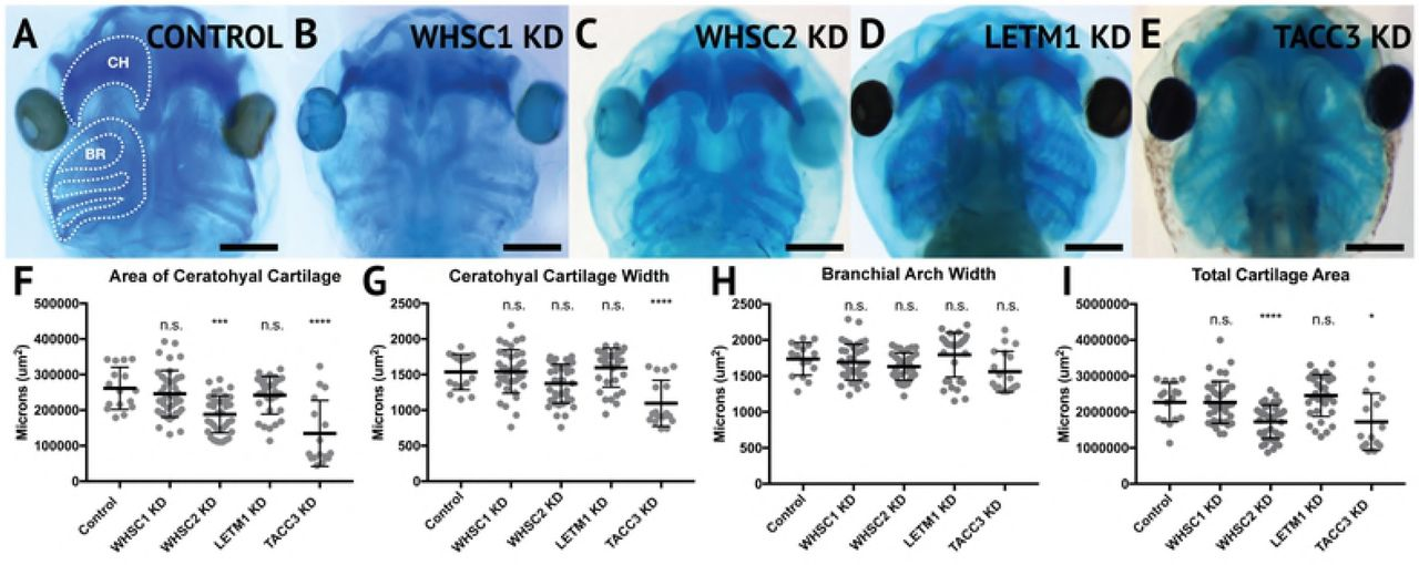 Wolf-Hirschhorn Syndrome-associated genes are enriched in motile
