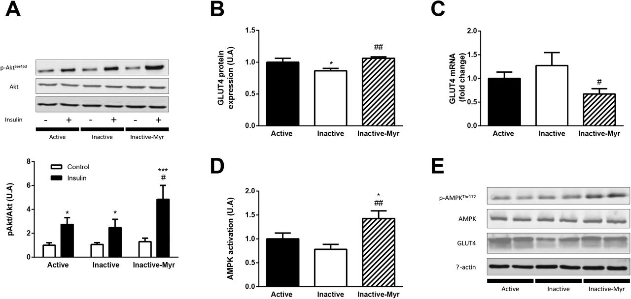 Skeletal muscle ceramides do not contribute to physical