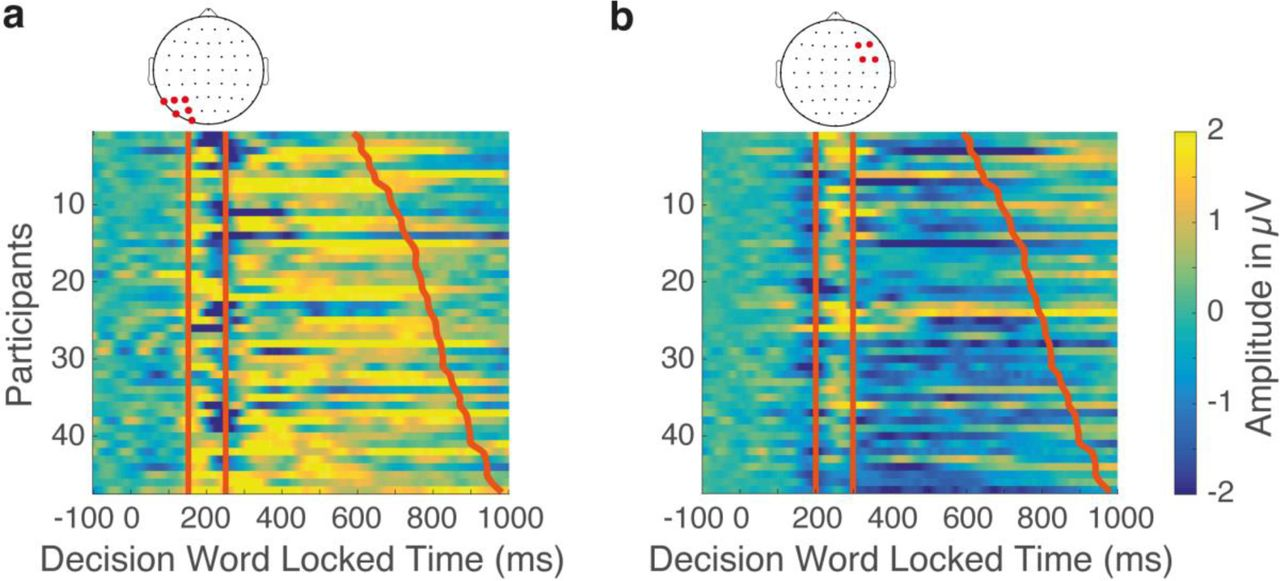Neural dynamics of the impact of font style on lexical