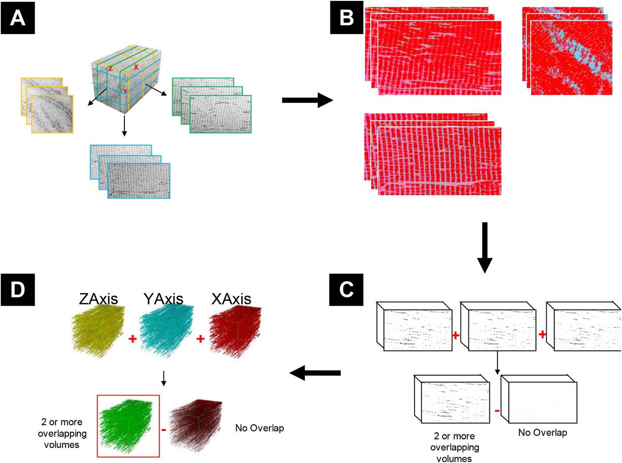 Automated methods for 3D Segmentation of Focused Ion Beam