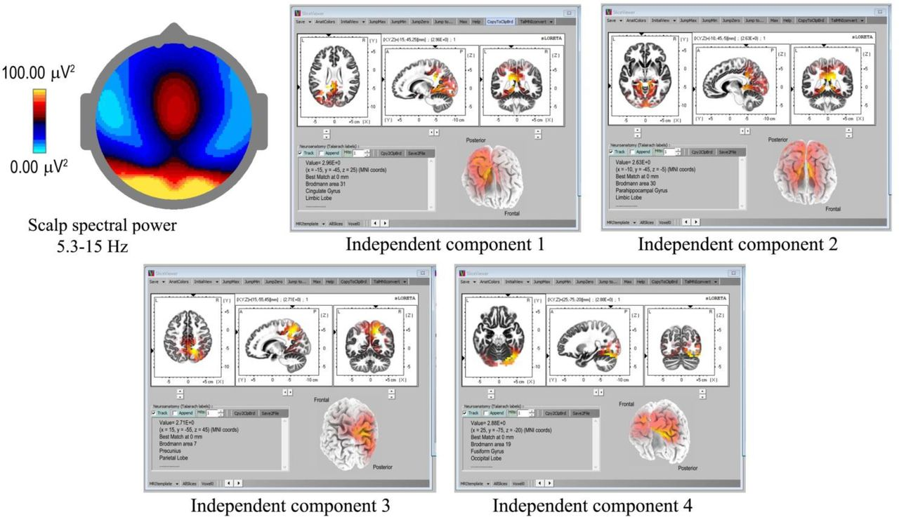 The human default consciousness and its disruption: insights