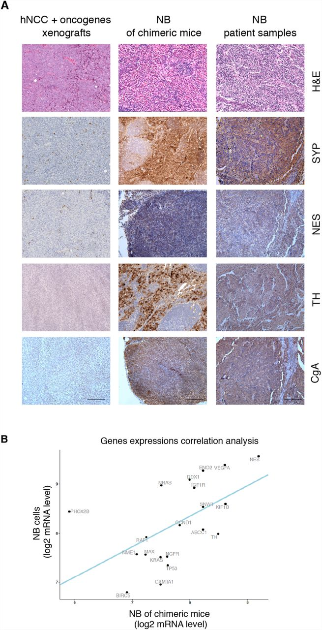 Tumor of Mouse-Human Neural Crest Chimeras Present Phenotypes of Human NB in Vivo. ( A ) H E and IHC comparing assay show that human NB tumors of chimeric mice express the typical NB markers Synaptophysin (SYP), Nestin (NES), Tyrosine hydroxylase (TH) and Chromogranin A (CgA), similarly to their expression found in NB samples of patient. hNCCS, which expressed oncogenes and were subcutaneously injected into immunocompromised mice to form xenograft tumors (left column) did not express these NB markers. (See IHC quantifications in Supplementary Figure 4 ; scale bars =100µm). ( B ) RNA-Seq of CHNB tumor samples (n=4) were separated in-silico into human and mouse reads to separate the tumor and hosts'-environment compartments (See material and methods). The analysis of RNA-Seq of the human-gene expression profile revealed that the human tumors in chimeric mice expressed a set of key genes normally associated with NB tumors ( ABCC1, BIRC5, CAMTA1, CCND1, DDX1, ENOS, IGF1R, KIF1B, KRAS, MAX, NES, NGFR, NME1, NRAS, PHOX2B, RAF1, SNW1, TH, TP53 and VEGFA ) with a significant correlation to expression in NB cell lines (Kelly and SHSY-5Y). linear regression p -value =0.011.