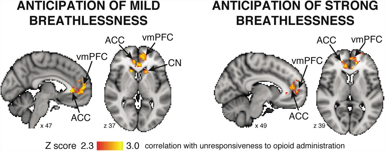 Opioids For Breathlessness Psychological And Neural Factors Influencing Response Variability Biorxiv