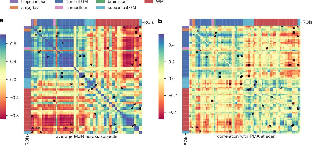 Neonatal morphometric similarity mapping for predicting