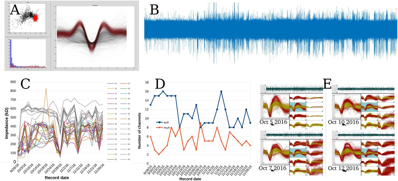 """The """"sewing machine"""" for minimally invasive neural recording 