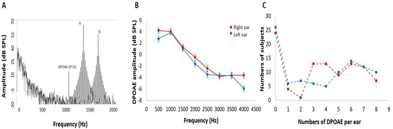 Cingulate Cortex Atrophy is Associated with Hearing Loss in
