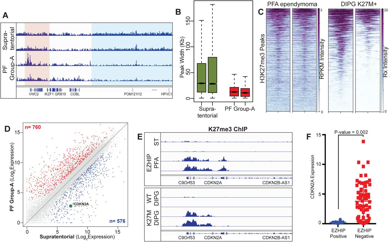 PFA ependymoma-associated protein EZHIP inhibits PRC2