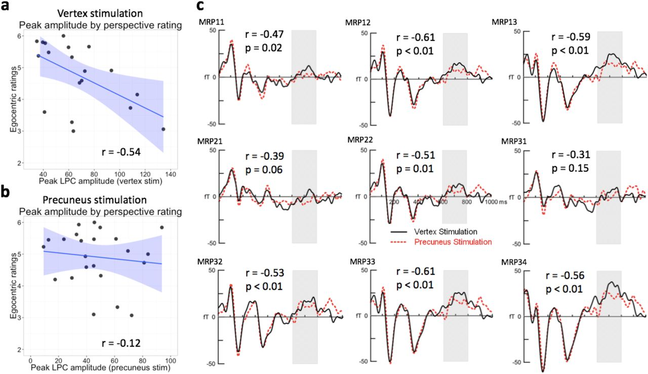 Precuneus stimulation alters the neural dynamics of