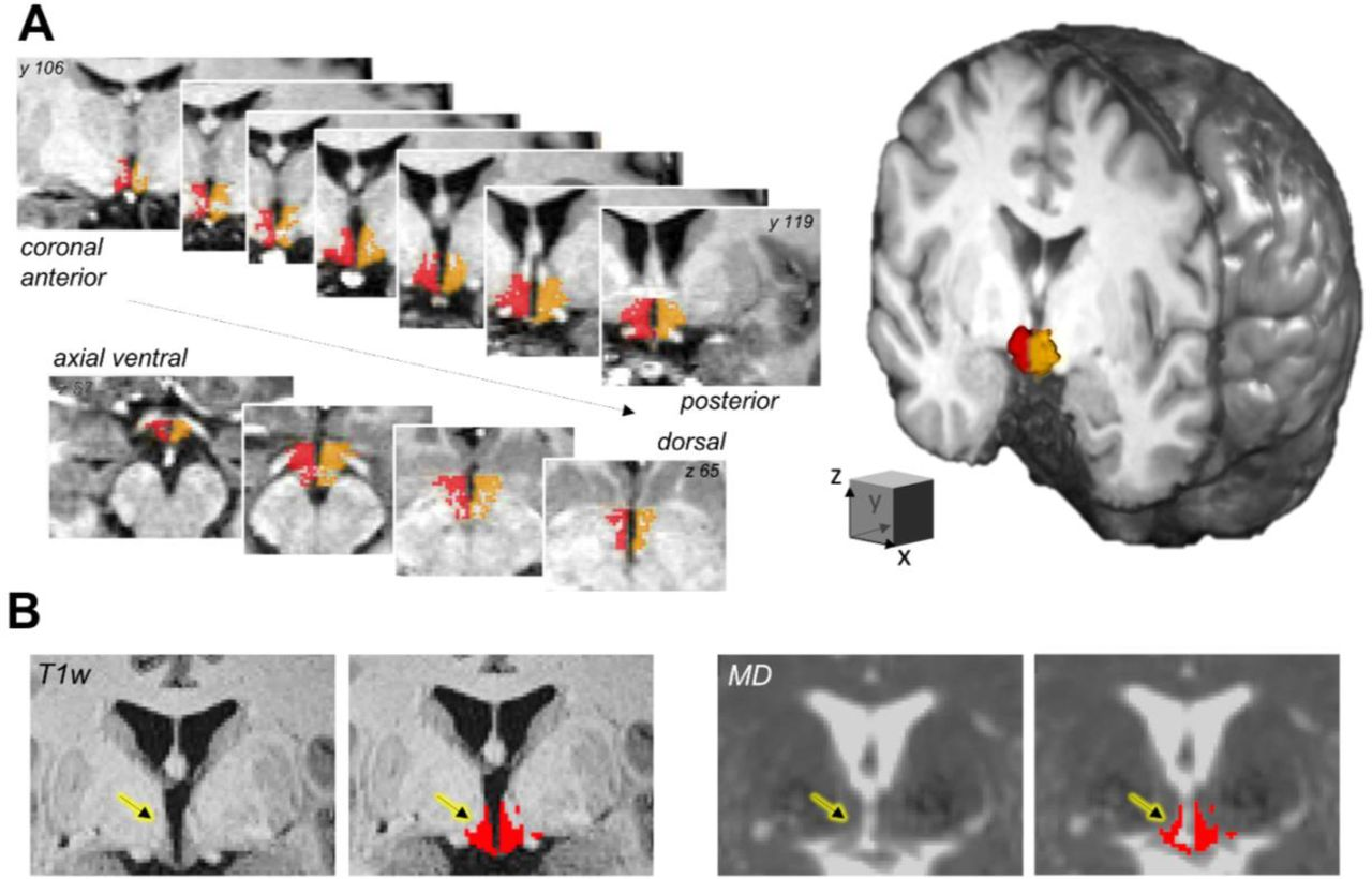Altered hypothalamic microstructure in human obesity | bioRxiv