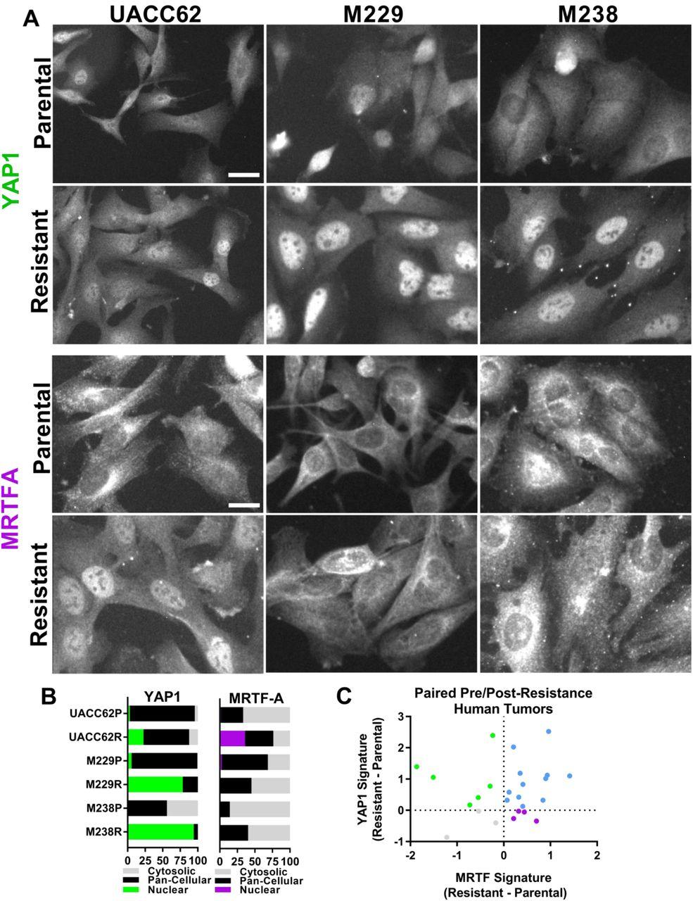 Rho-mediated gene transcription promotes BRAF inhibitor