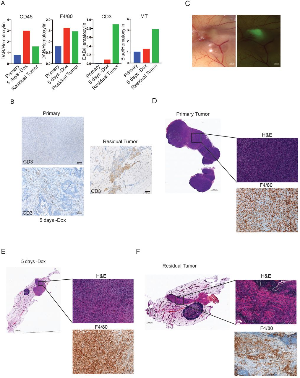CCL5 promotes breast cancer recurrence through macrophage