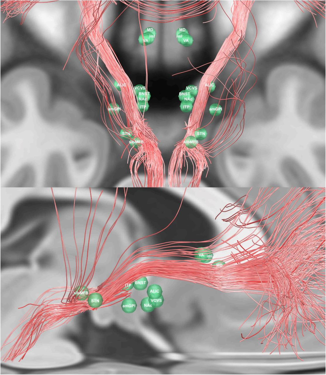 Toward a unified connectomic target for deep brain