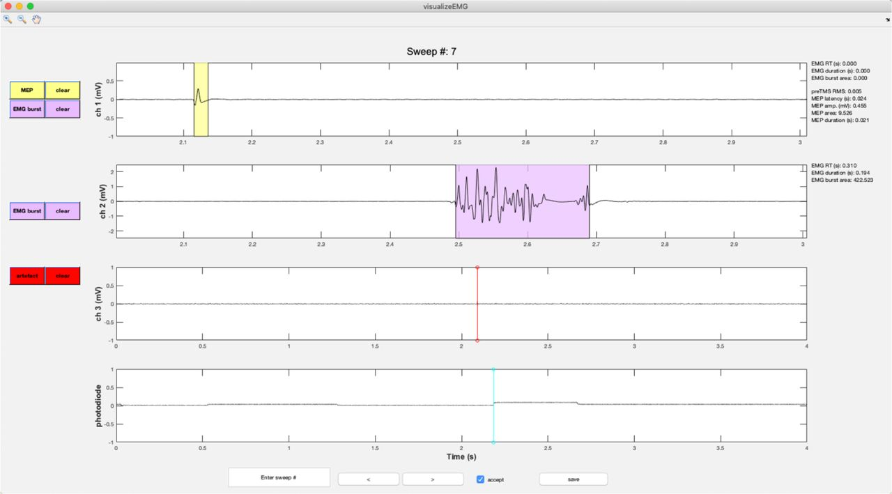 VETA: a Matlab toolbox for the collection and analysis of
