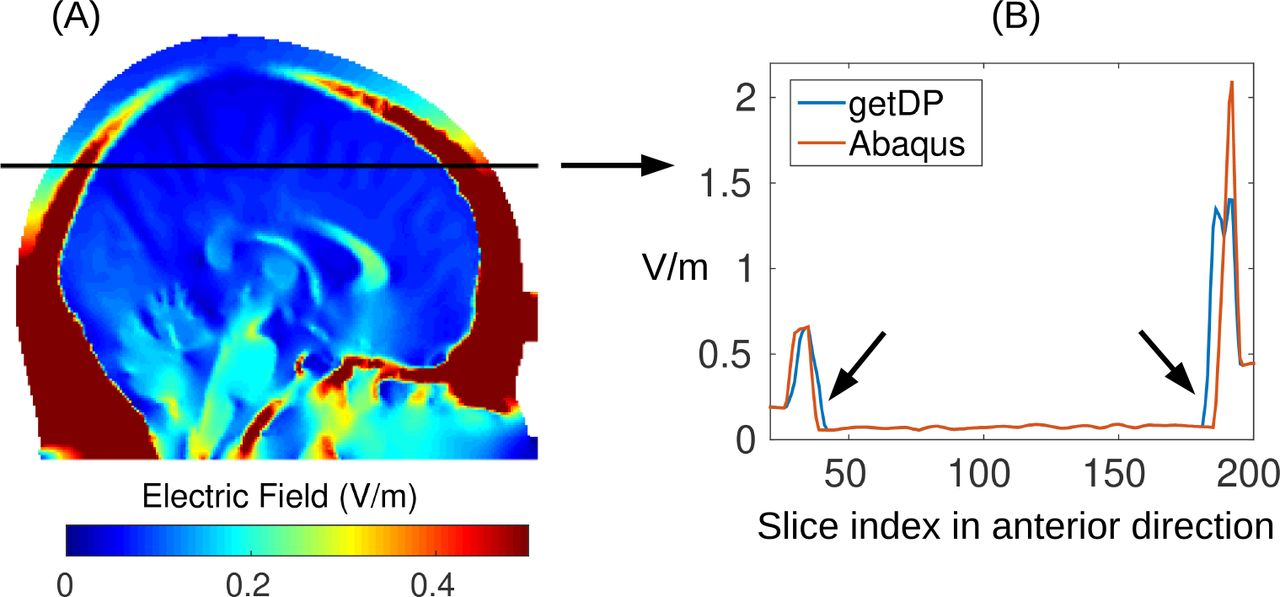 Realistic vOlumetric-Approach to Simulate Transcranial