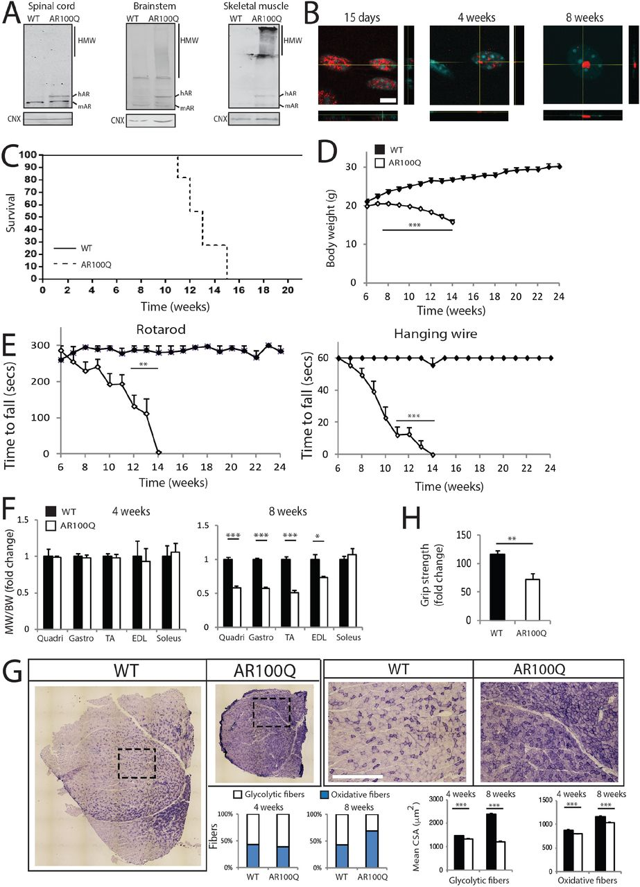0275d5cfa9 Polyglutamine-expanded androgen receptor disrupts muscle triad ...