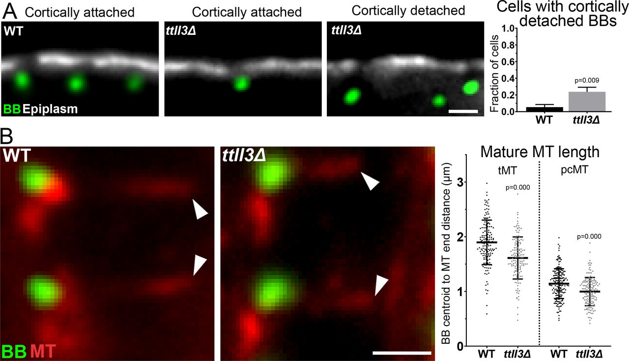 Microtubule glycylation promotes basal body attachment to the cell