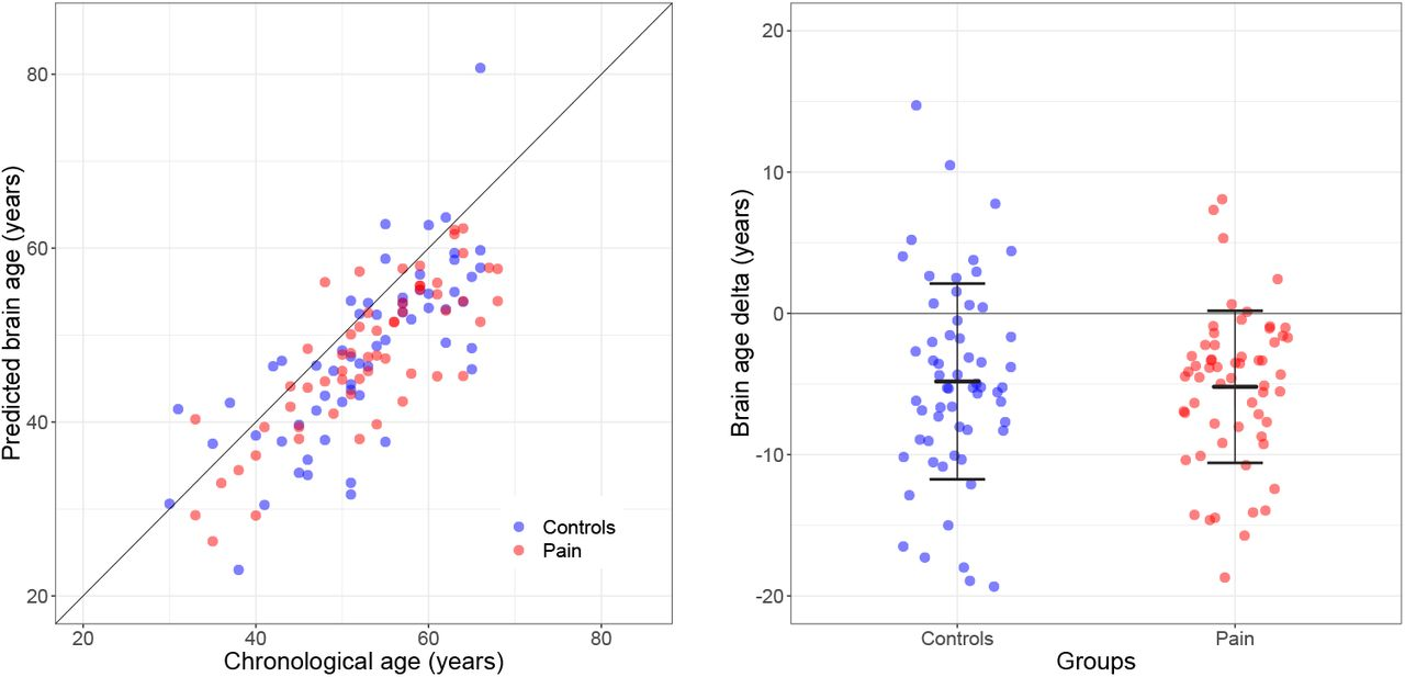 No evidence for accelerated brain aging in patients with