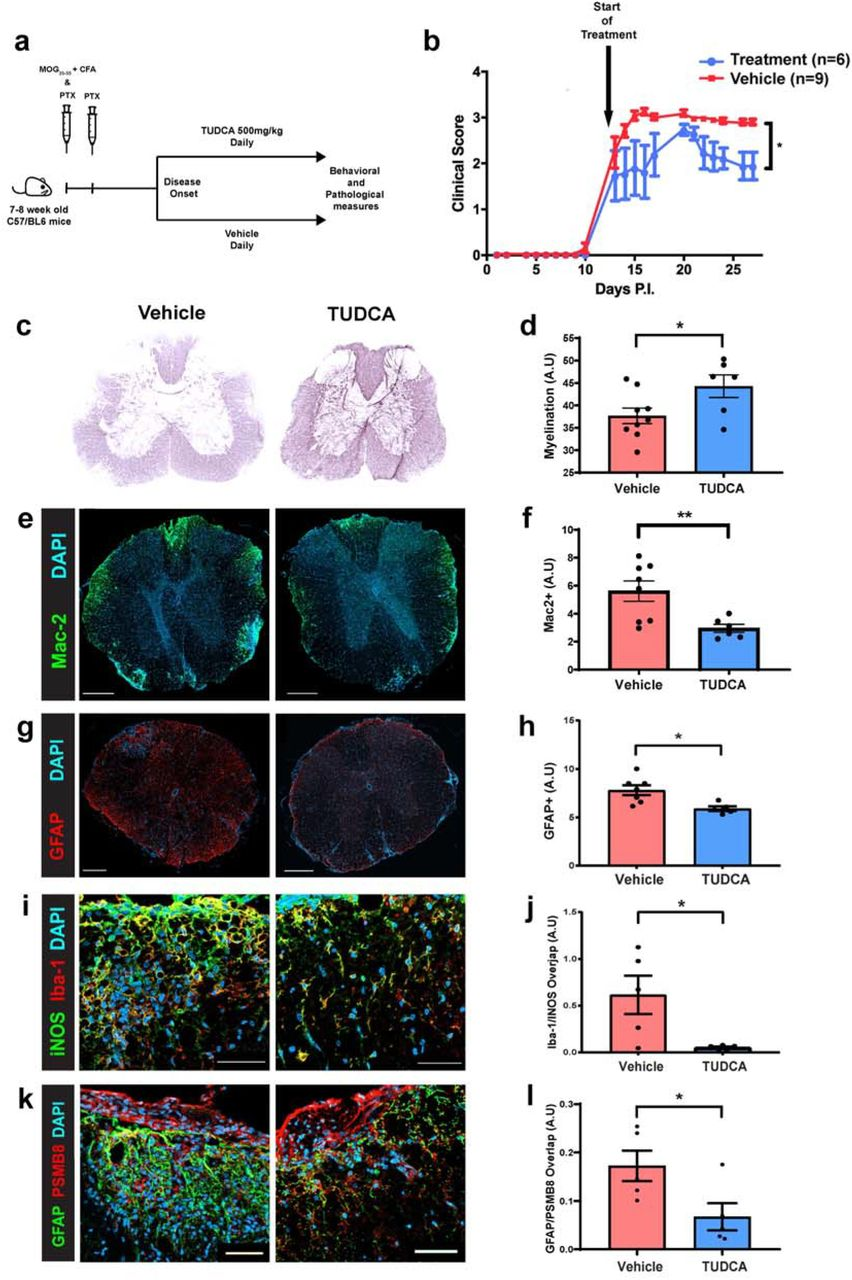 Bile acid metabolism is altered in multiple sclerosis and