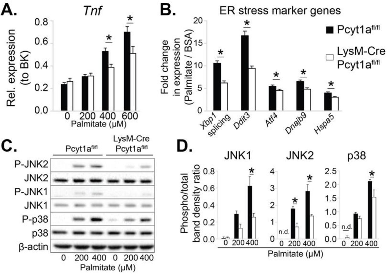 Accelerated phosphatidylcholine turnover in macrophages